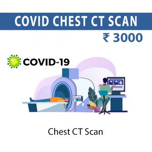 COVID CT SCAN