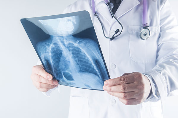 X Ray Chest